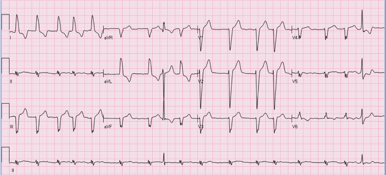 89 year old female with heart palpitations.