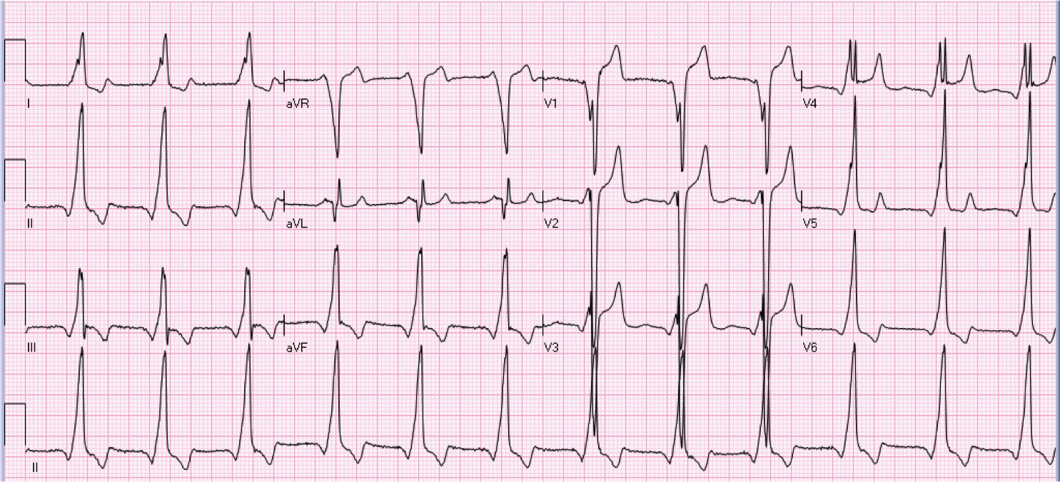 36 year old male with history of palpitations.