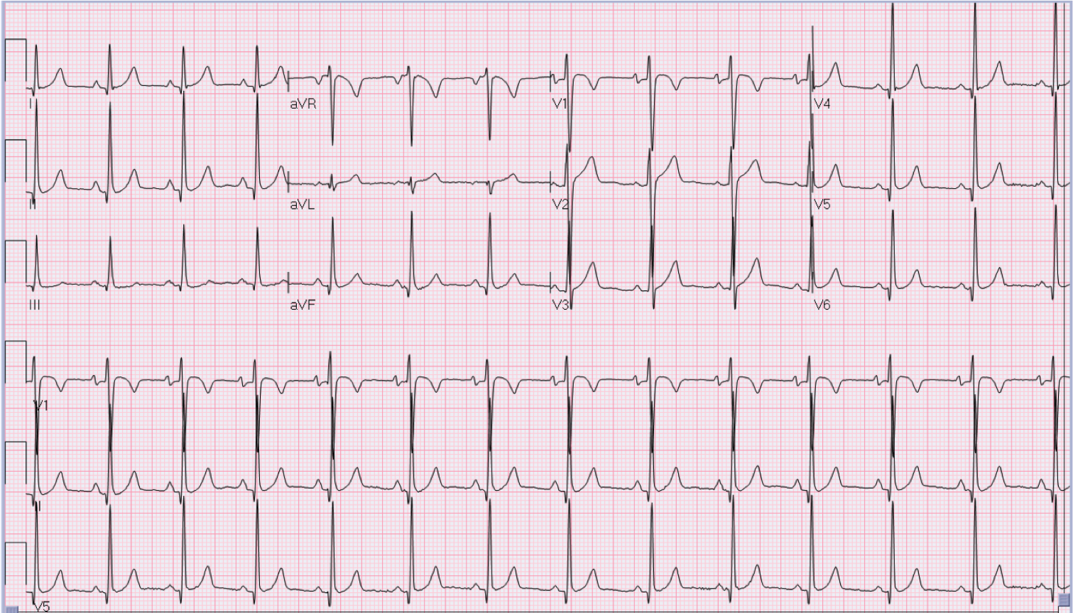 20 year old asymptomatic male.