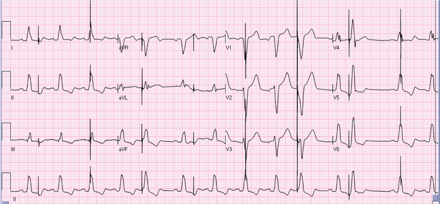 66 year old female who is 2 days post an aortic valve replacement.