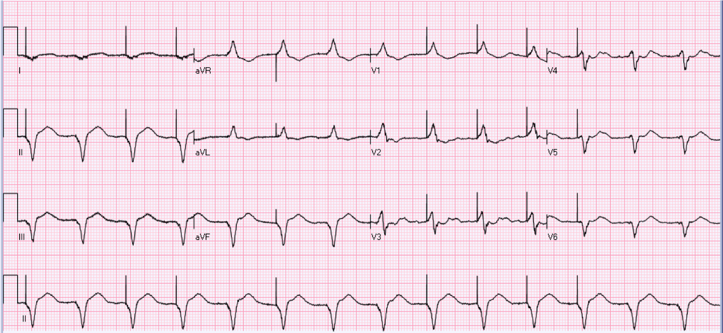 64 year old female with a history of pacemaker.