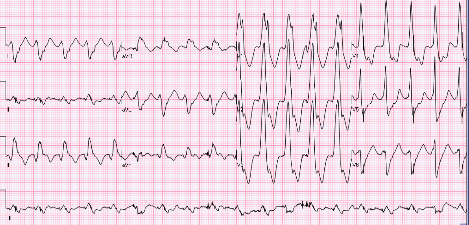 72 year old female with palpitations.