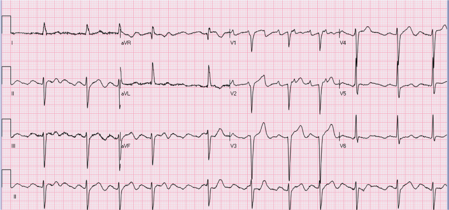 53 year old female with heart palpitations.