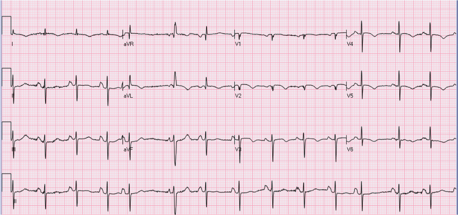 72 year old female with dyspnea and heart palpitations.