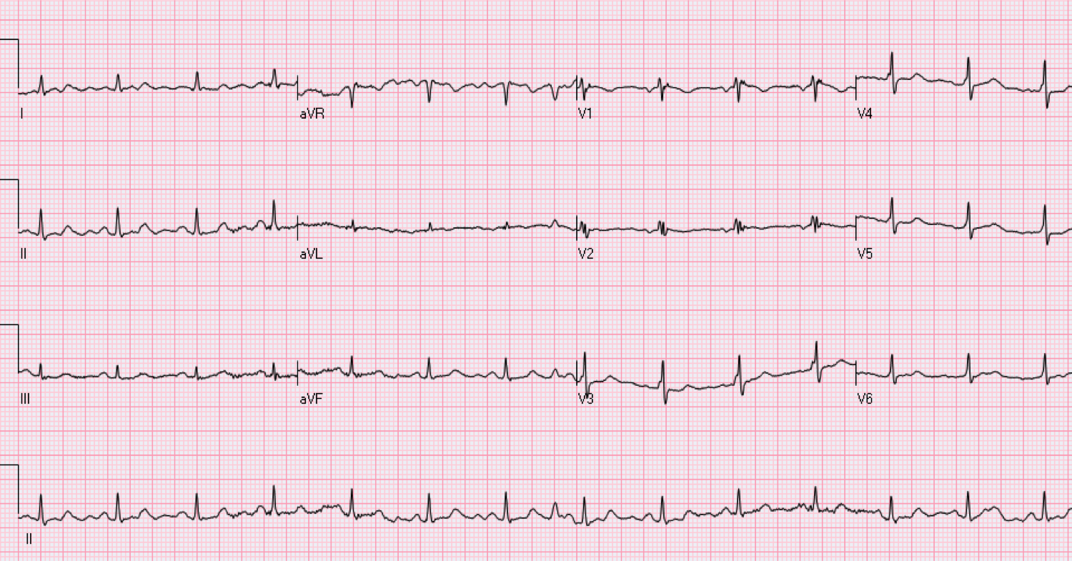 68 year old male who is asymptomatic.