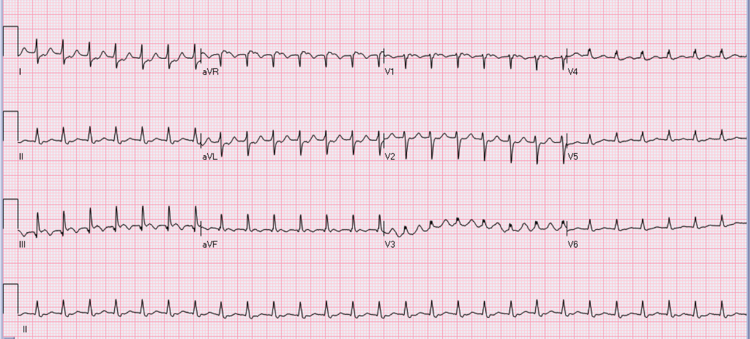 40 year old female with palpitations