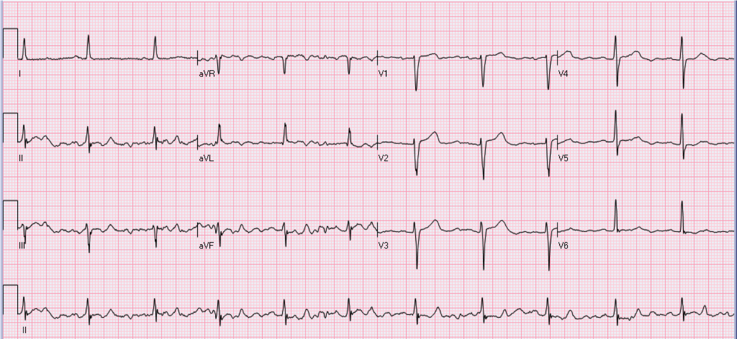 63 year old female who is asymptomatic.