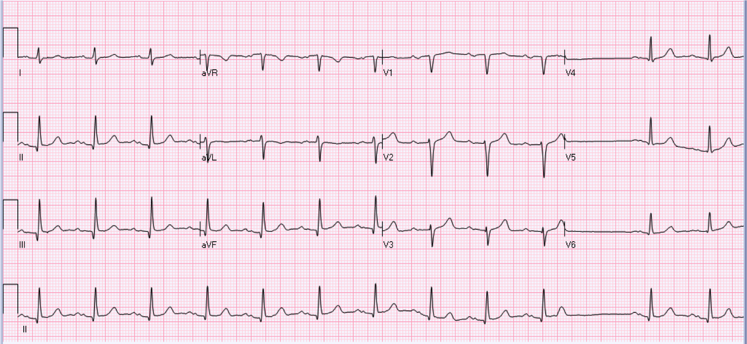 31 year old male who is asymptomatic and has a history of cardiomyopathy.