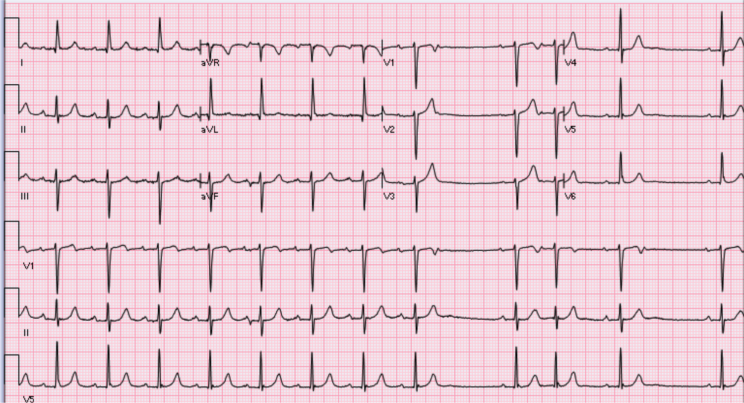 64 year old male with syncope.