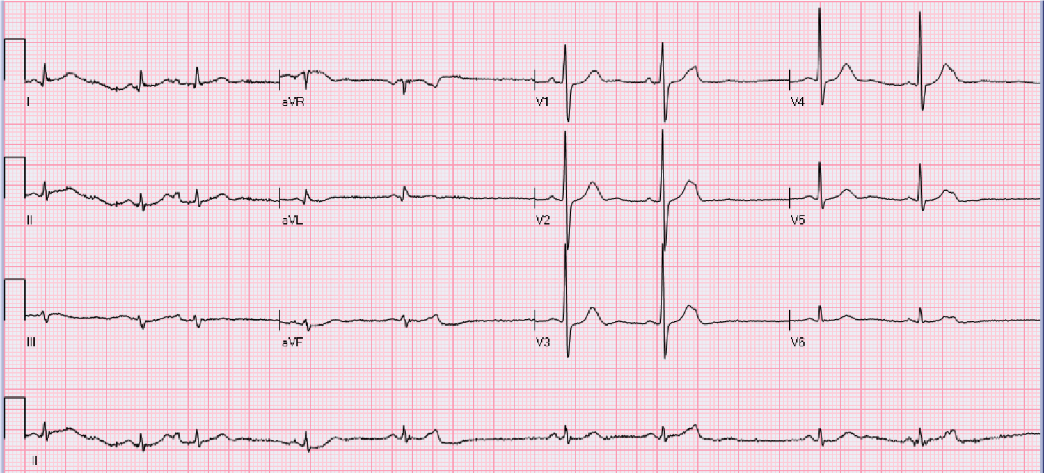 68 year old male with syncope.