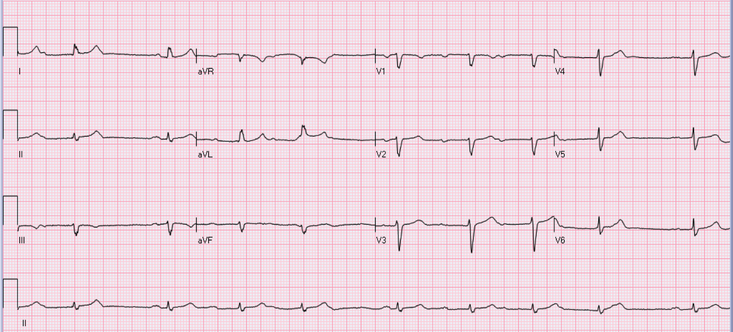 79 year old male with fatigue.