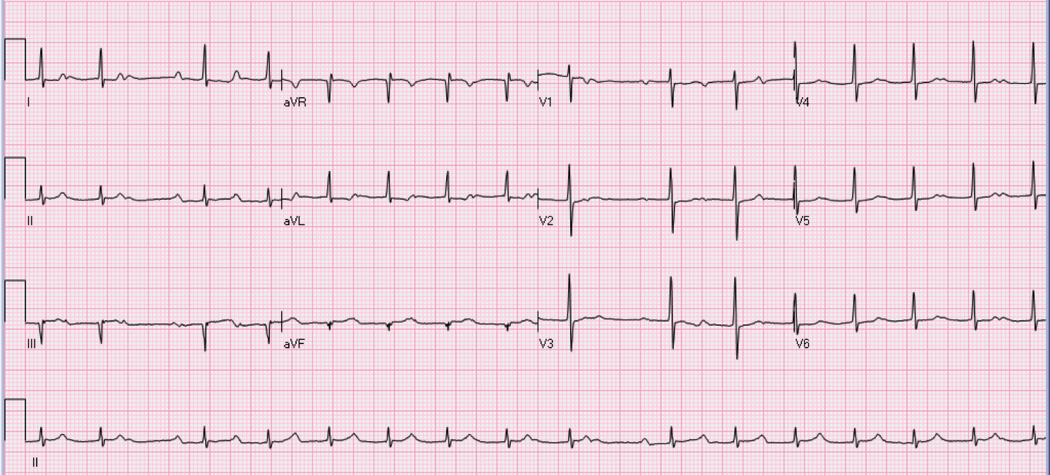 62 year old male who is asymptomatic.