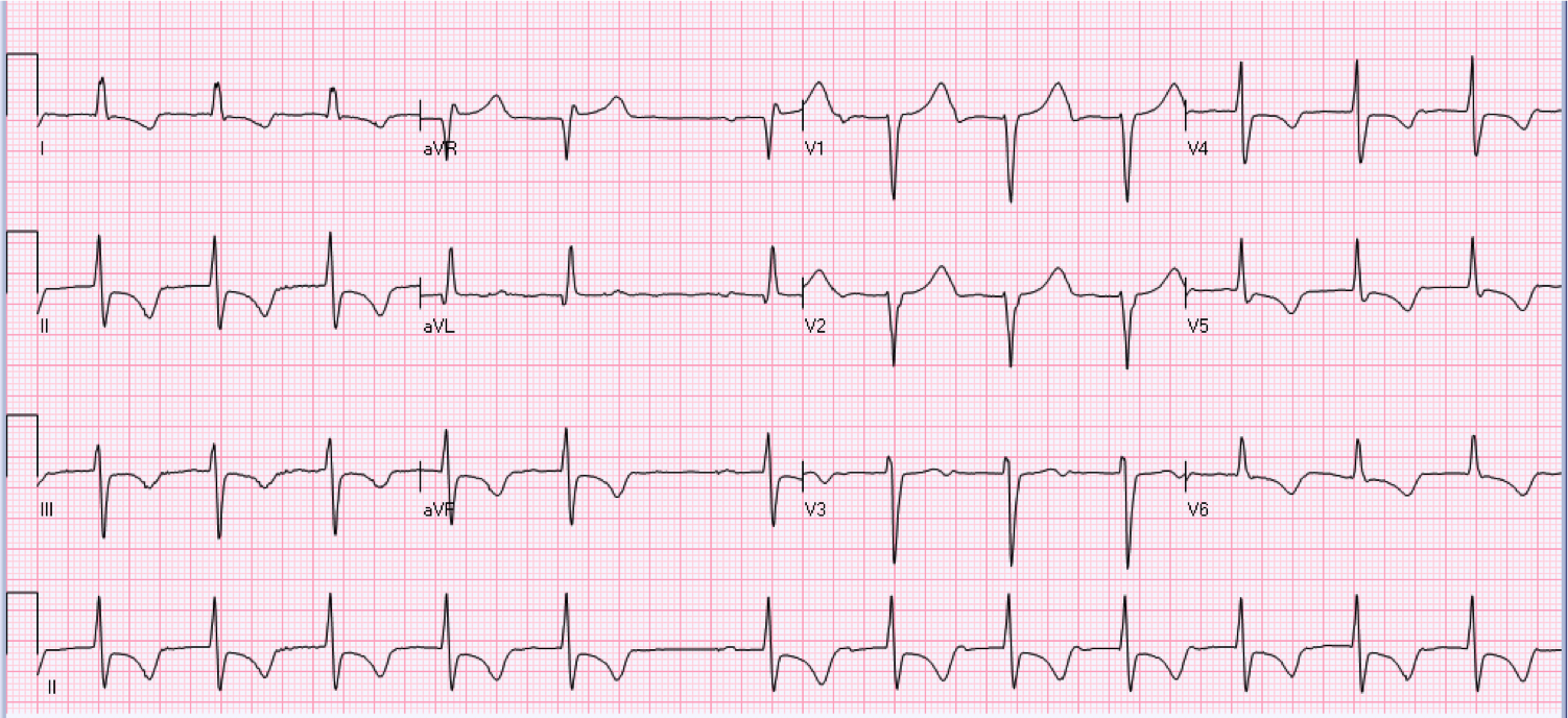 80 year old male on telemetry floor.