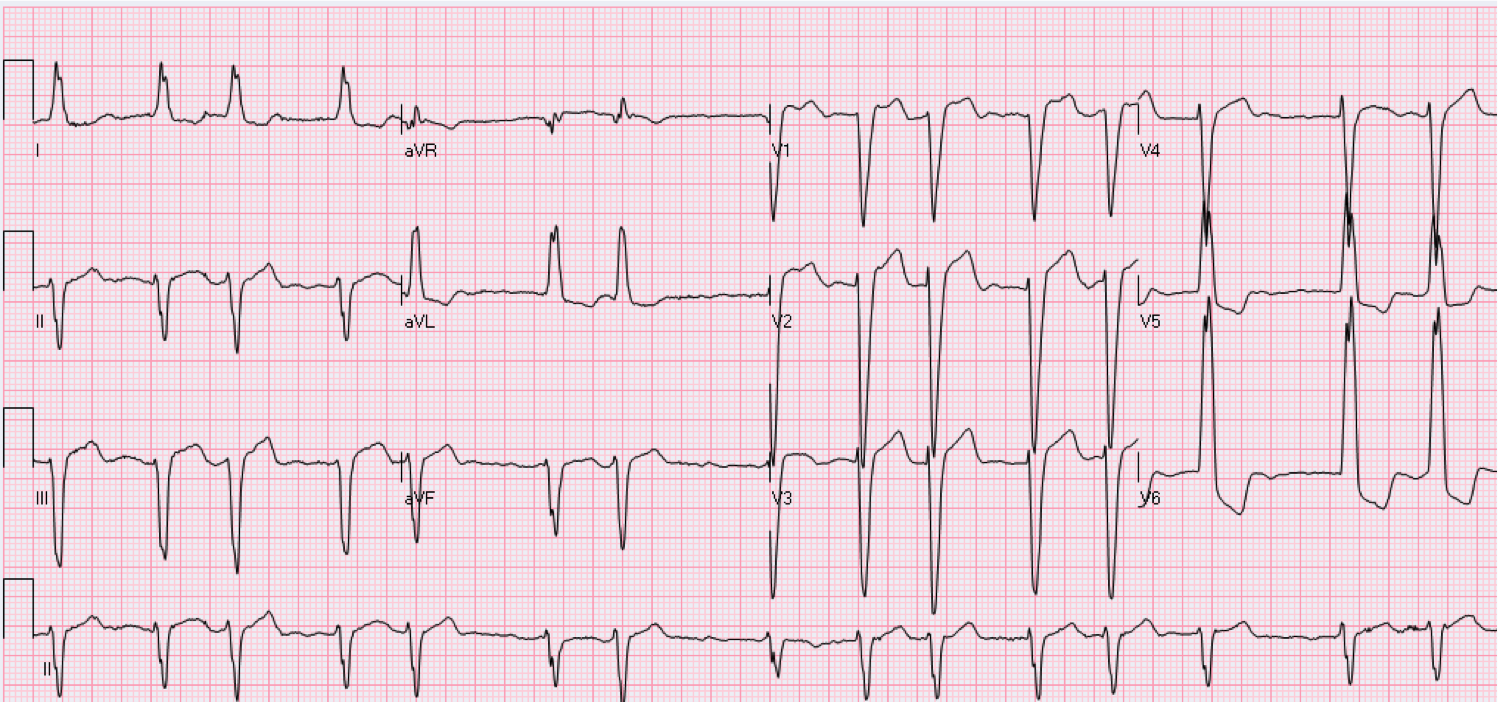 78 year old female with heart palpitations.