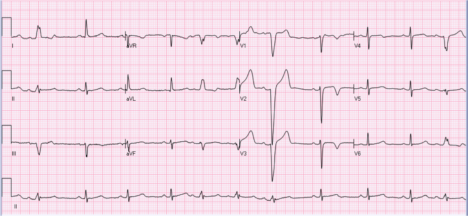 64 year old male who is asymptomatic.