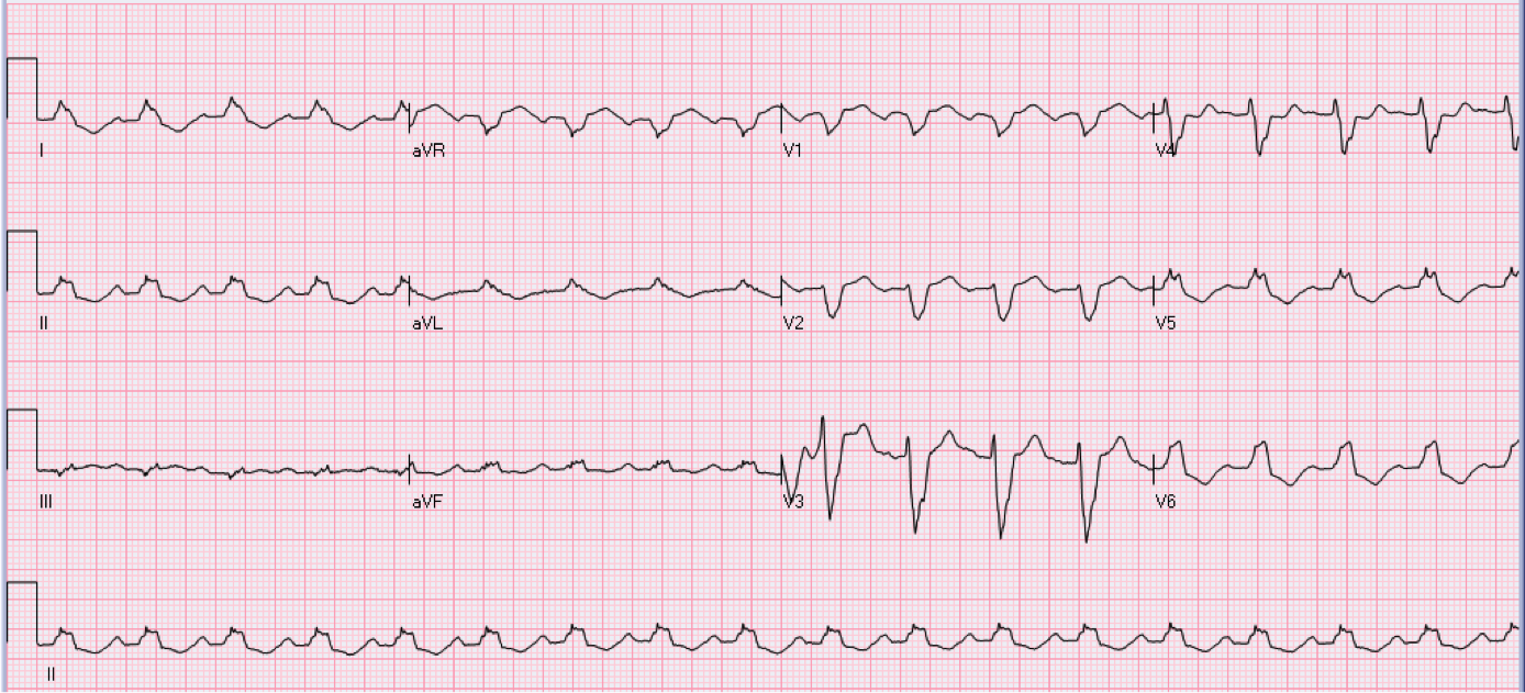 65 year old male in the coronary care unit.